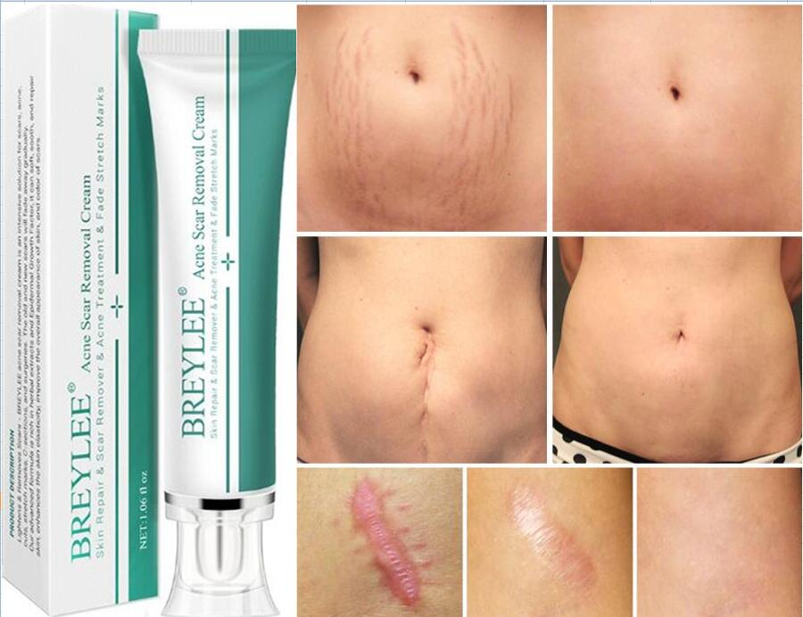 30G Brand Removal Scar Cream Face Pimples Scar Stretch Marks Removal Acne Treatment Whitening Moisturizing Cream