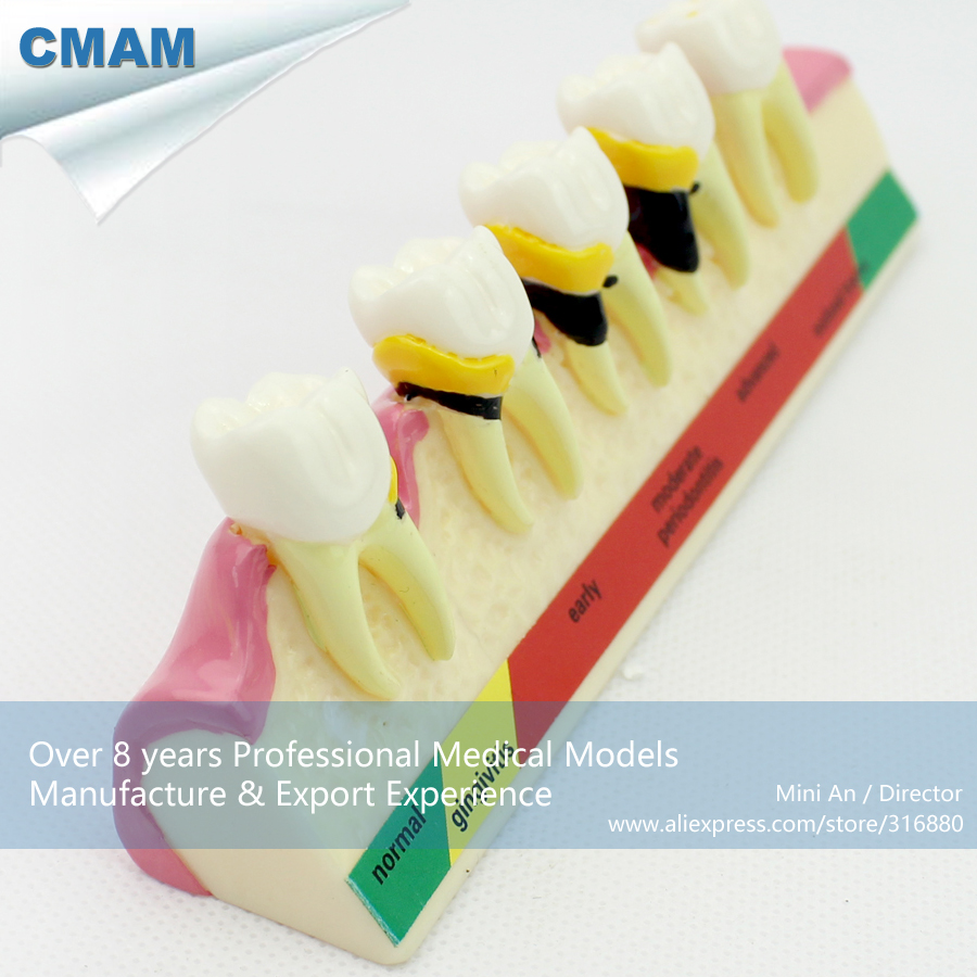12585 CMAM-TOOTH09 Dental Periodontal Disease assort Tooth Typodont Study Model, Medical Science Dental Teaching Models 2016 dental orthodontics typodont teeth model half metal half ceramic brace typodont with arch wire