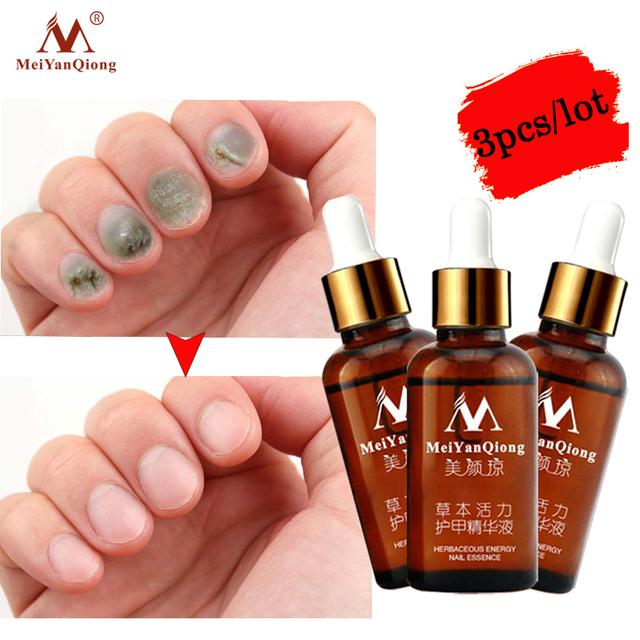 3pcs/lot  Fungal Nail Treatment Repair Essence Nail and Foot Hand Care Whitening Toe Nail Anti Fungus Removal Infection Nail Gel