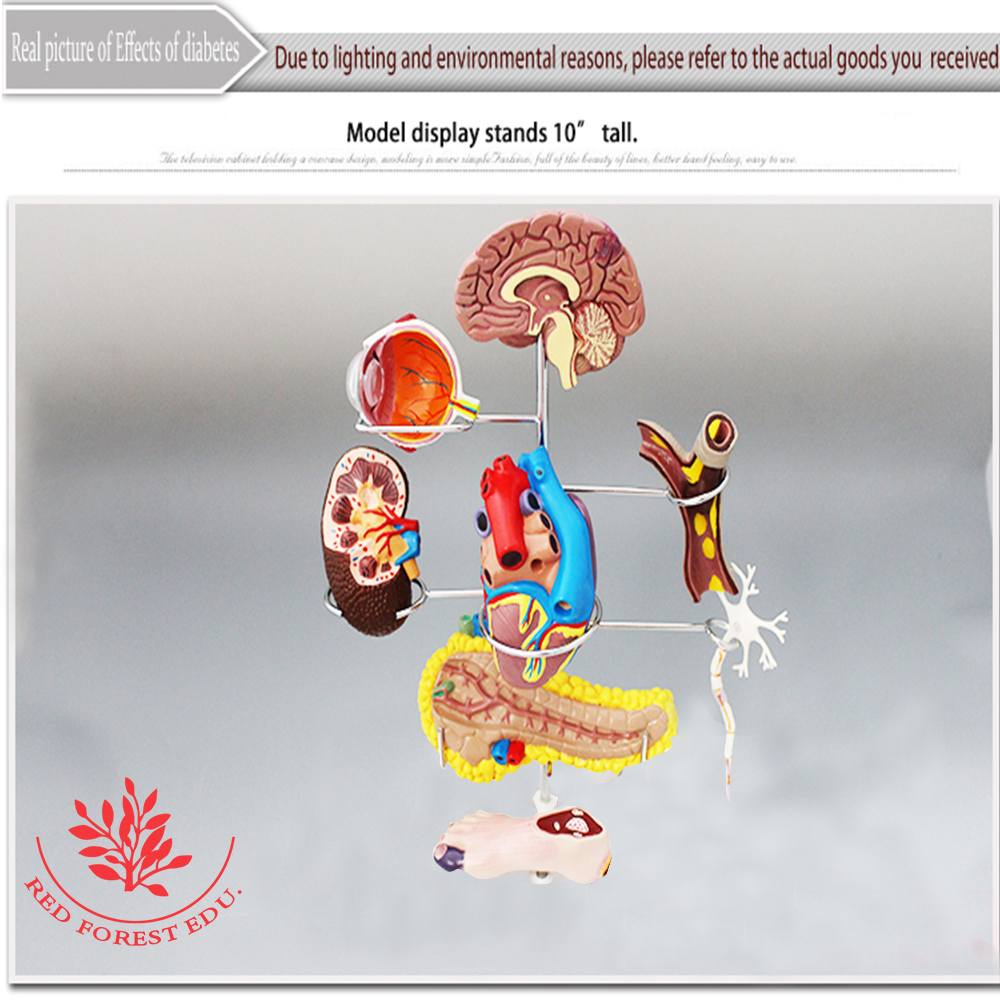 High Quality biological 7 Parts pathology medical Effects of ...