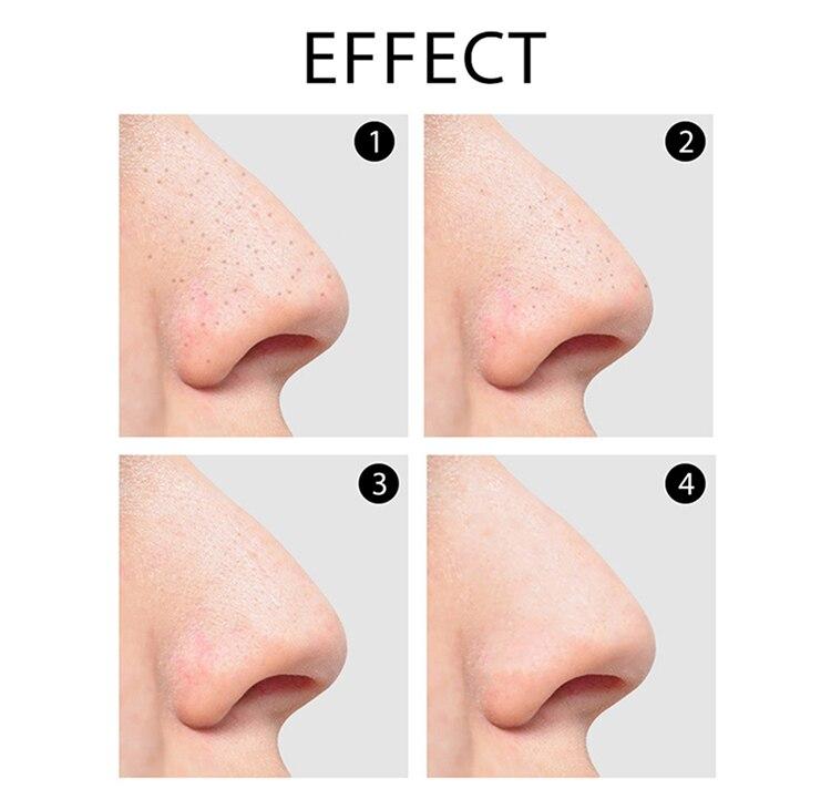 Facial Pore Cleaner Cravo Acne Pimple Remover