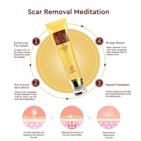 LANBENA Acne Scar Removal Cream Skin Repair Face  scar removal cream Acne Spots Whitening Cream Skin Care (no box)  TSLM1 Multan