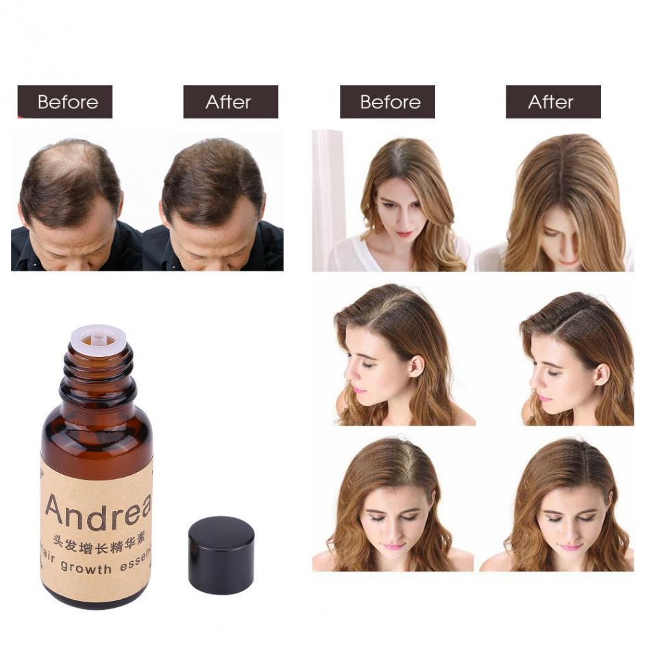 Natural Fast Hair Growth 20ml Essence Oil Ginseng Scalp Health Hair Loss Treatment Liquid Oil Hair Care Tool