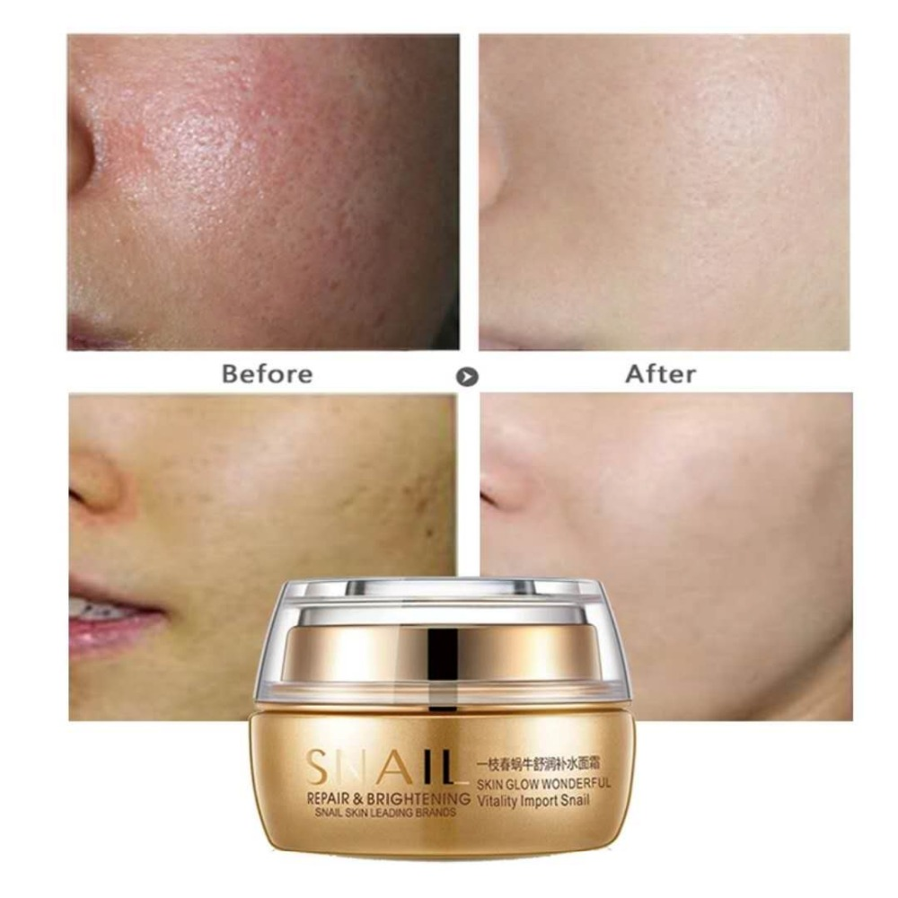 Moisturizing Face Cream Remove Age Spot Scar Pigment Whitening Anti Wrinkle Cream Day & Night Cream Beauty Miracle Glow wholesale yanko day cream night cream whitening cream remove spot freckle