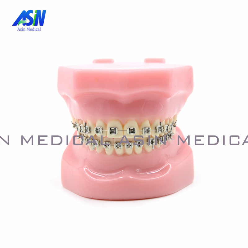 NEW Arrival Dental Orthodontics Typodont Teeth Model Metal Brace bracket Typodont with Arch Wire 2016 blue dental orthodontics typodont teeth model half metal half ceramic brace typodont with arch wire