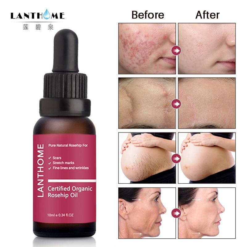 Pure Rosehip Oil Essence Face Cream Moisturizing Acne Treatment Skin Care Repair Whitening AntiAnging Winkles Face Serum TSLM1