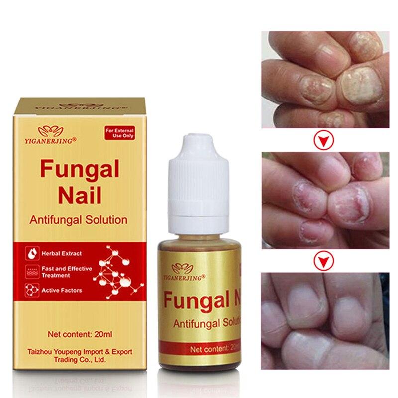 Oil-Essence Nail-Tip Liquid-Fungus-Treatment Natural-Bactericidal for Hot-Tslm1 20ml