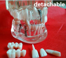 Orale Science Onderwijs Apparatuur Wortelkanaal Vulling Model Dental removeable Tanden Model dental activiteit pathologische model(China)