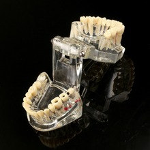 Dental Implant Disease Teeth Model With Restoration Bridge Malocclusion Orthodontic Model For Medical Science Dental Research