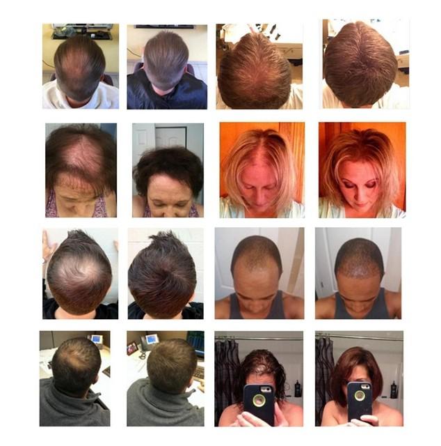 Refill bag 1kg Instant TOPPIK  Hair Fibers material Keratin Building Fiber Powders Hair Extension Natural 10 colors