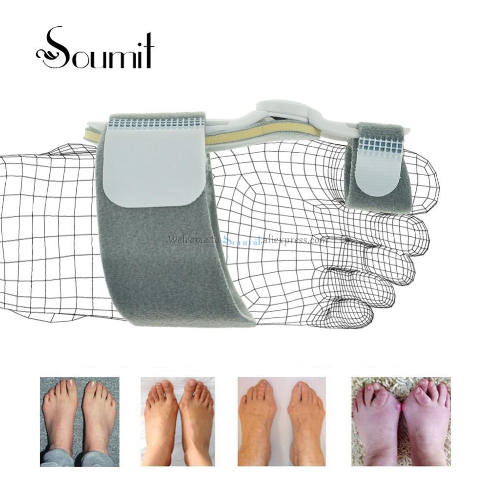 Soumit Bunion Device Splint Straightener Hallux Valgus Orthopedic Braces Toe Correction Corrector Thumb Big Bone Orthotics Care big toes bunion splint straightener corrector