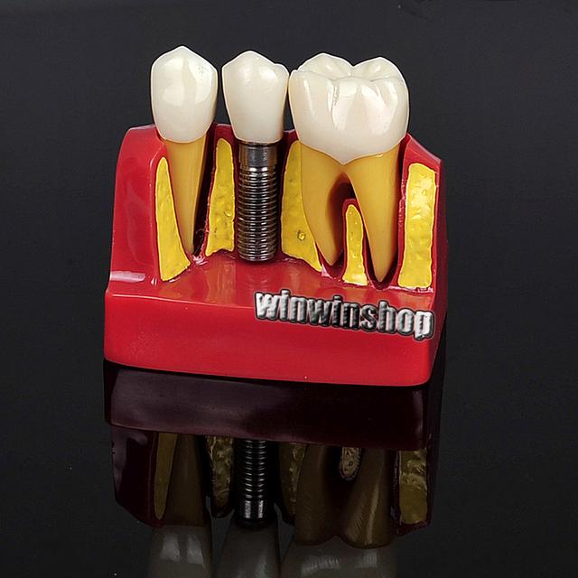 Implantes dentales Análisis Corona Puente Demostración Dental Modelo de Los Dientes 2017