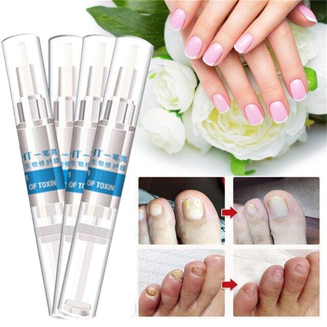 4pcs Nail Treatment Pen Infection Nail Bright Pencil Fungal ...