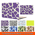 Painted fashion pattern Hard Rubberized Surface Matte Case Cover Fashion Laptop bag For Macbook Air Pro Retina 11 12 13 15''