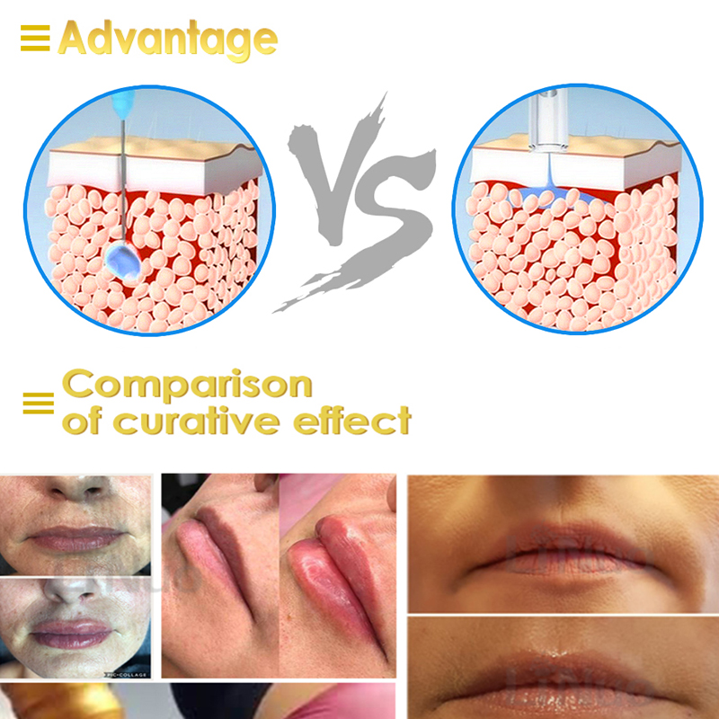 Image 5 - 0.3ML Disposable Ampoule Head for Hyaluronic Pen Consumables Sterile Atomizer Hyaluronic Gun Wrinkle Removal Lip Lifting Syringe-in Tattoo Tips from Beauty & Health