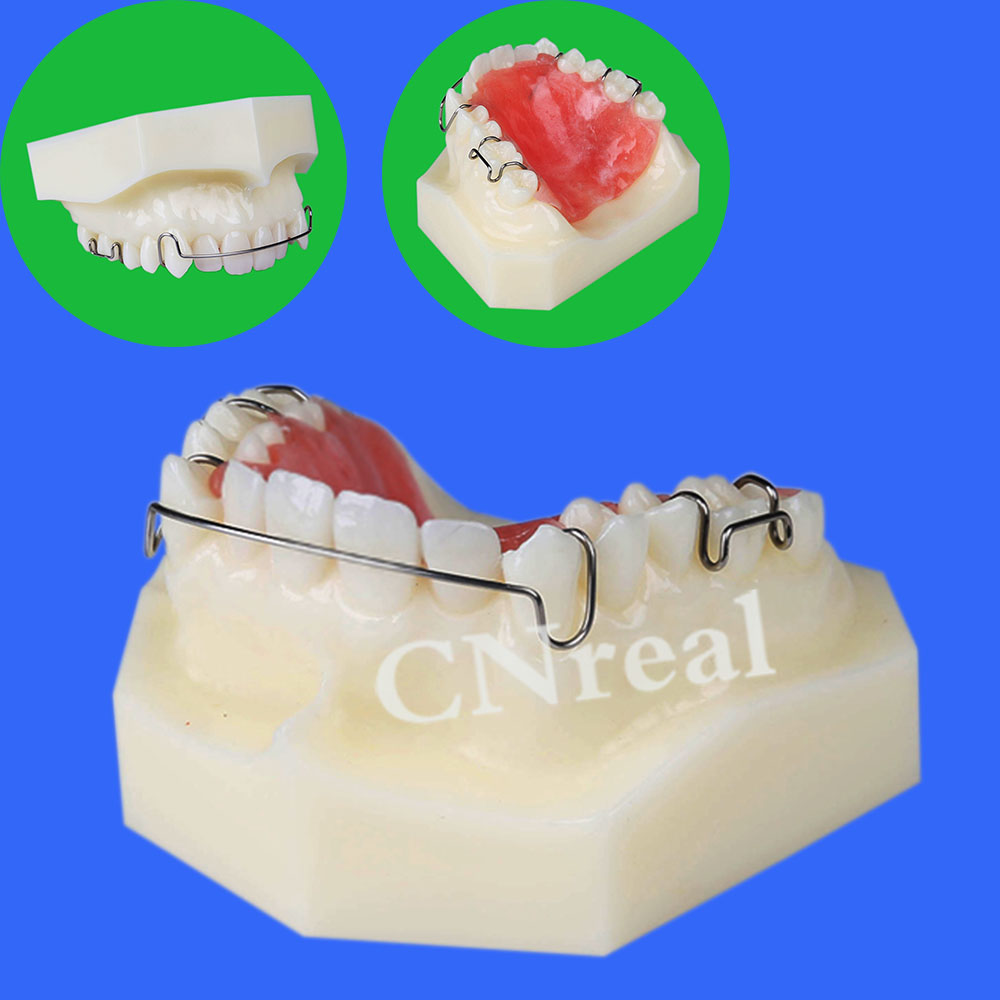 1 piece Dental Retainer Demonstration Model for Teaching and Display dental retainer demonstration model orthodontics treatment model