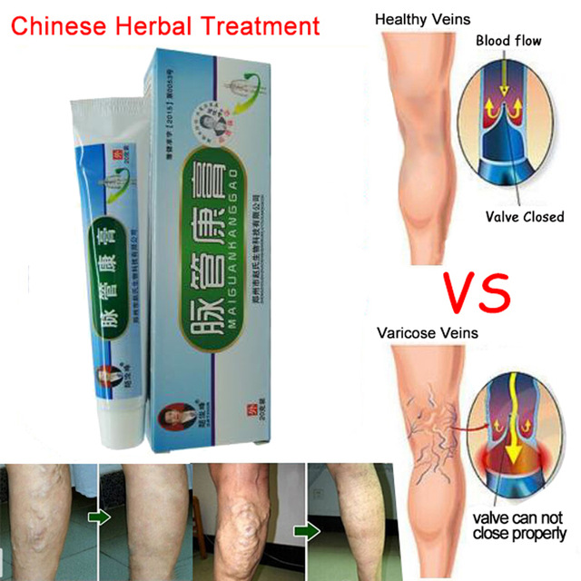 1boxes Chinese natural herbal medicine for treating varicose vascular inflammation massage cream cure varicose vein ointment sumifun 100% original 19 4g red white tiger balm ointment thailand painkiller ointment muscle pain relief ointment soothe itch