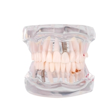 Hot Sale 1 Pcs Removable Dental Implant Disease Teeth Model with Restoration Bridge Tooth Dentist for Medical Science Teaching