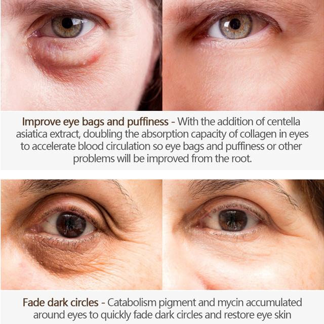 Magic Eye Cream