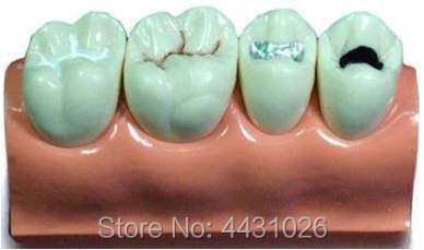 ENOVO Dental model oral cavity model of dental system enovo medical qualification examination tooth extraction model oral cavity dental model oral cavity division tooth extraction