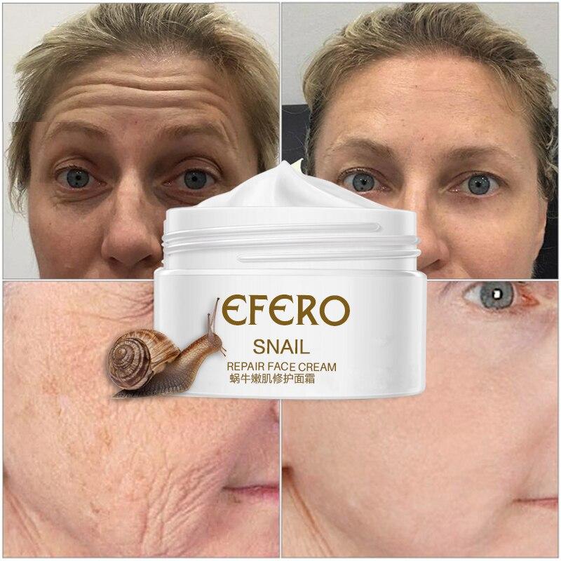 30g Acne Snail Whitening Face Cream Serum for Anti-wrinkle Aloe Vera Skin Moisturizer