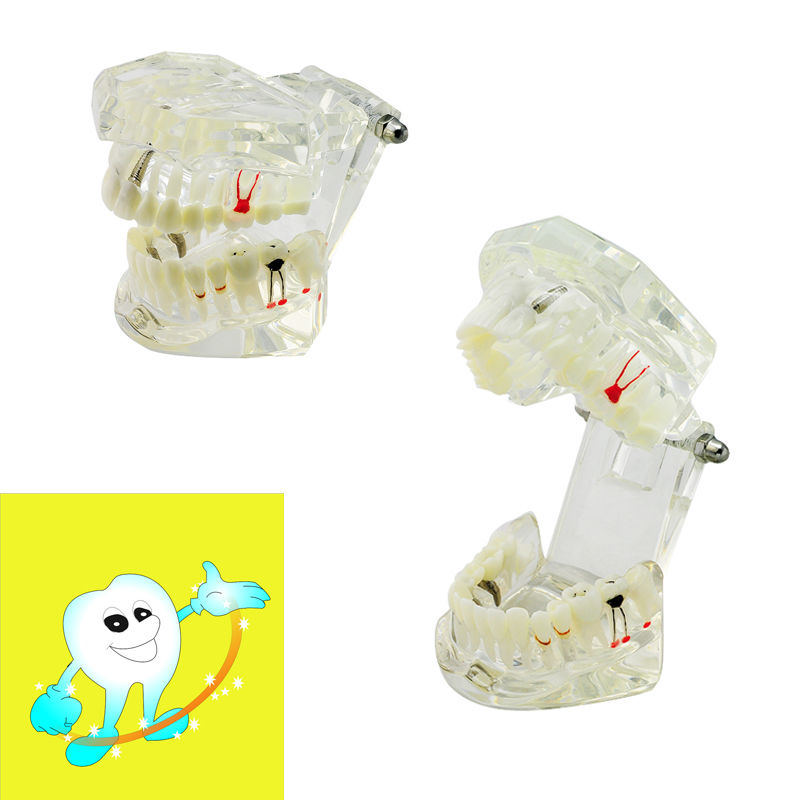 Dental Demonstrative Implant Disease Tennemodell med restaurering + Bridge Tooth