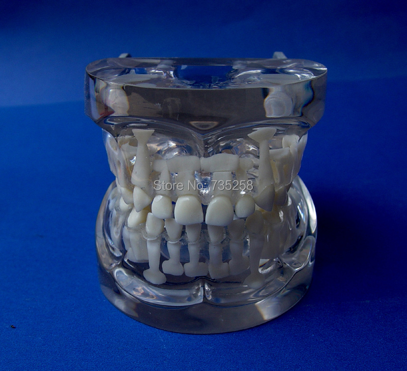 5 to 9 Years Old Tooth Development Model,Baby Teeth Model,Permanent Teeth Model years