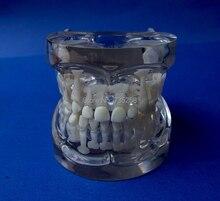 5 to 9 Years Old Tooth Development Model Baby Teeth Model Permanent Teeth Model