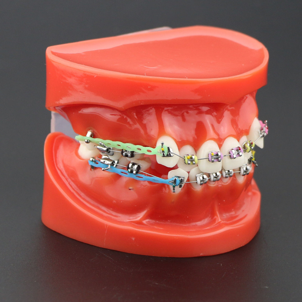 Orthodontic Model 28 Unit Teeth With Half Metal Bracket And Half Ceramic For School Training Study And Communicate With Patients dual task training effect in patients with parkinsonism
