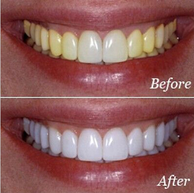 Novo 2018 Barato Eficaz Clareamento Dental Ferramentas De Marca