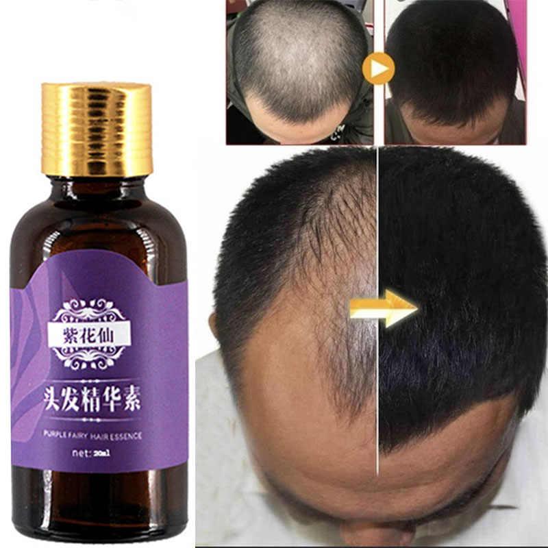 Utrata włosów produkty naturalne bez skutków ubocznych rosną włosy szybsze odrastanie produkty stymulujące porost włosów