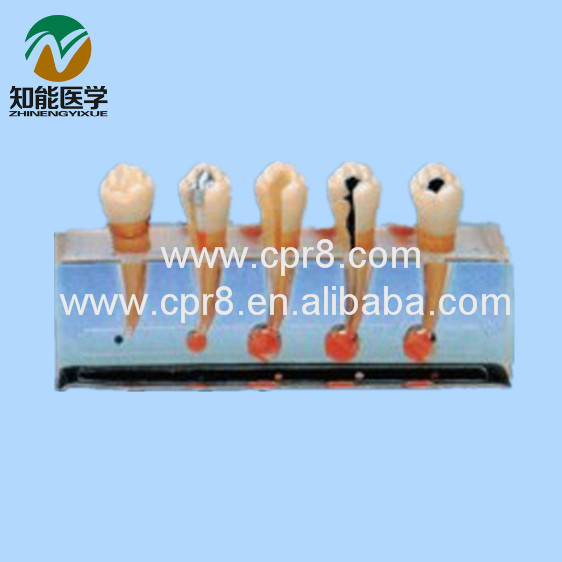 Clinical Dental Pulp Disease Model Dental Model BIX-L1011 WBW367 dental root canal filling practice model dental pulp model teaching model