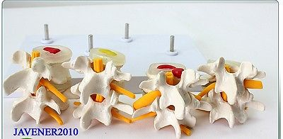 4-Part Human Anatomical Lumbar Vertebra Diseased Contrast Medical Model