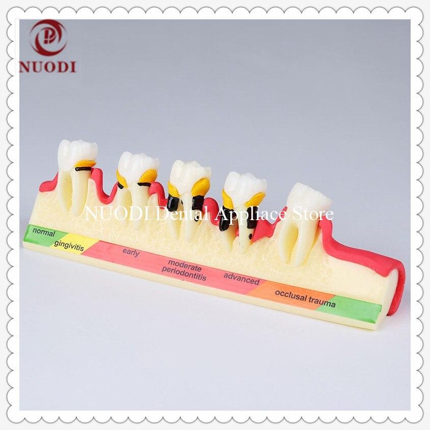 Dental Periodontal Disease Model/Dental Teeth Model Demonstrates The Progress Of Periodontal Disease