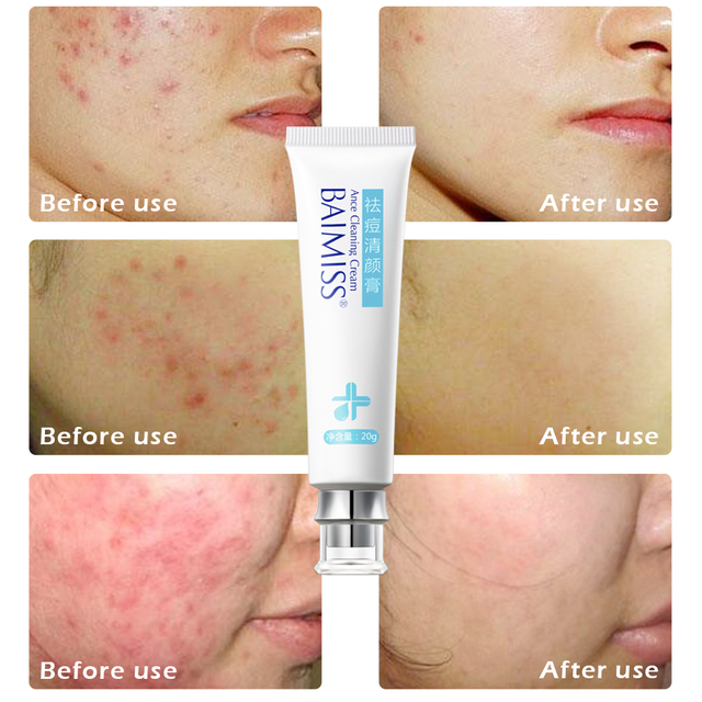 BAIMISS Acne Treatment Cream Anti Acne Remover Facial Skin Care Repair Comedone Pimple Quickly Natural Herbal Remove Scar Gel
