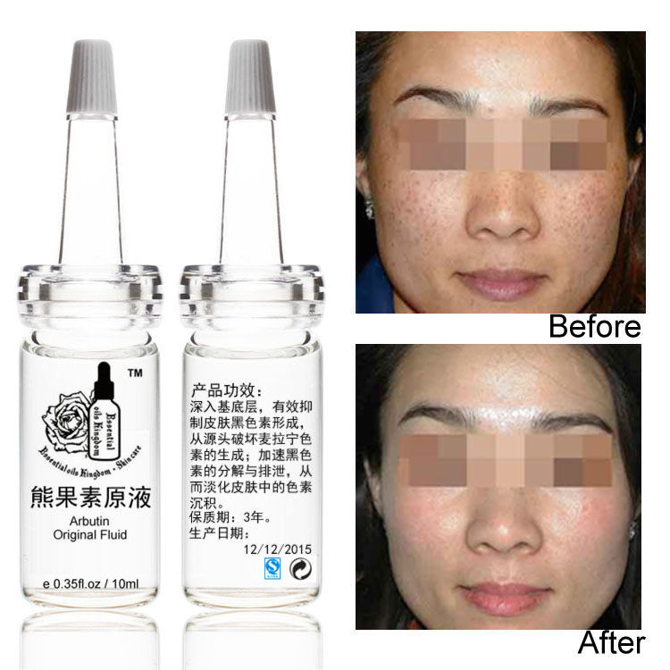 10ml*pcs Arbutin Original Fluid Stoste Liquid Skin Lightening Whiten Fleck Anti Freckles Liver Spots Hyperpigmented Area