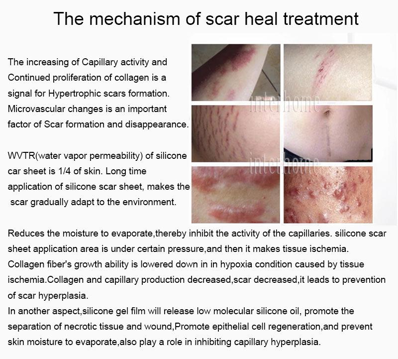 Self-adhesive-silicone-scar-paste(9)