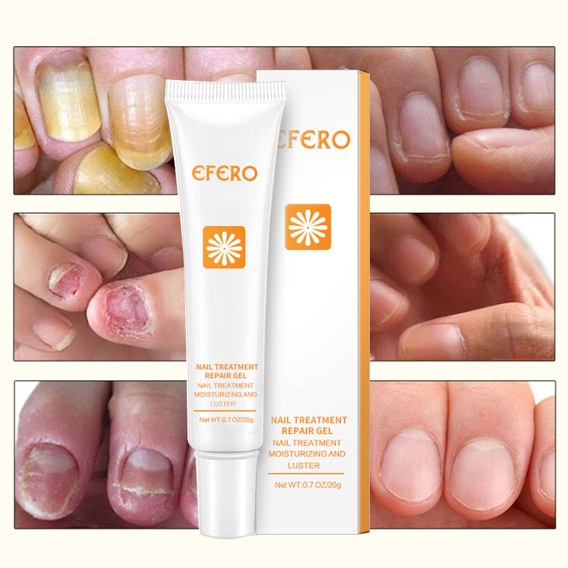 EFERO Remedy For Nail Foot Fungus Treatment For Cuticle Remover Nail ...