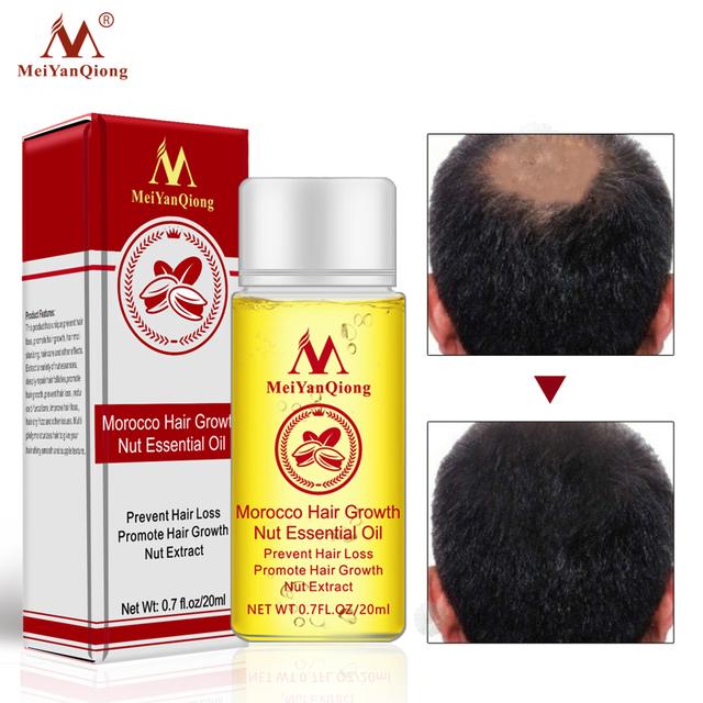Mei Yan Qiong 5 Pzas de Aceite Esencial para el Crecimiento y Perdida del Cabello Reparador Quita Caspa 20 ml