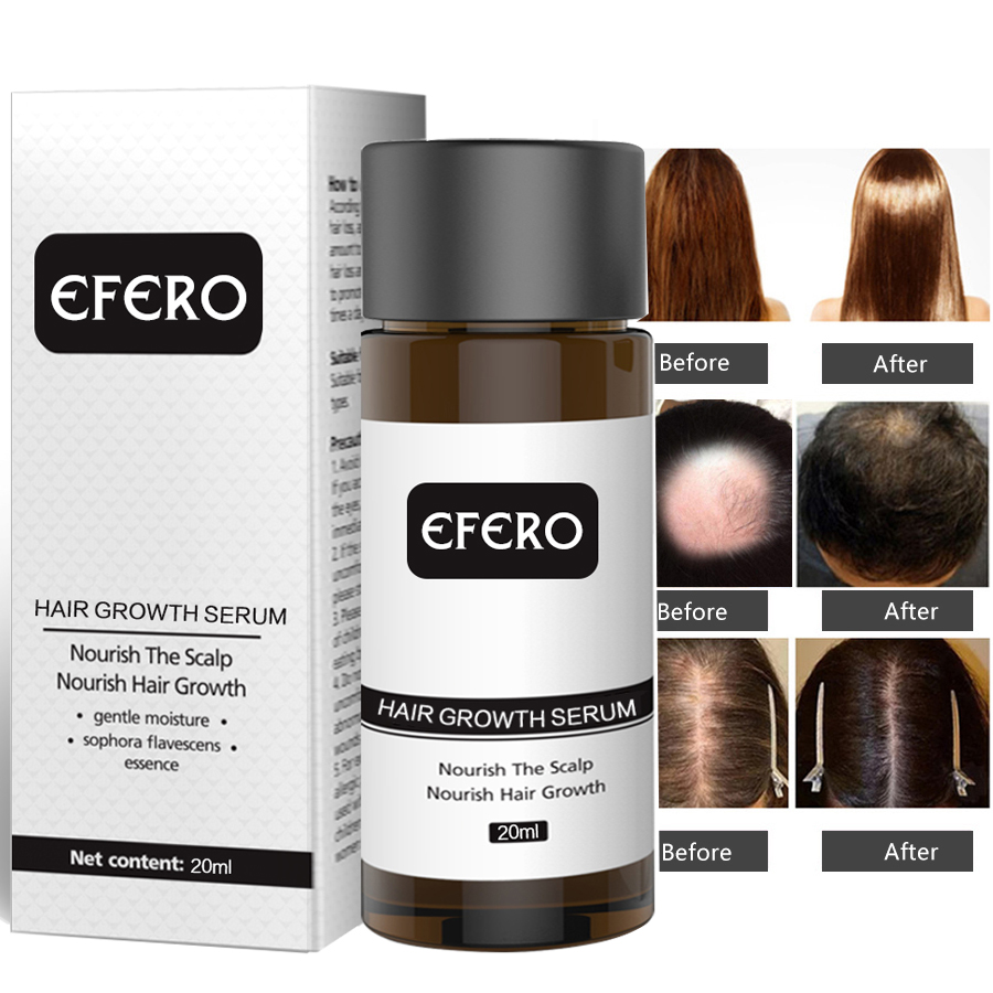 Image 3 - EFERO Powerful Hair Growth Essence Hair Loss Products Essential Oil Baldness Treatment Preventing Hair Loss Hair Care Grow 20ml-in Hair Loss Products from Beauty & Health