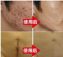 Nuobisong Original authentic face care acne scar removal cream  Spots skin care whitening face cream stretch marks moisturizing
