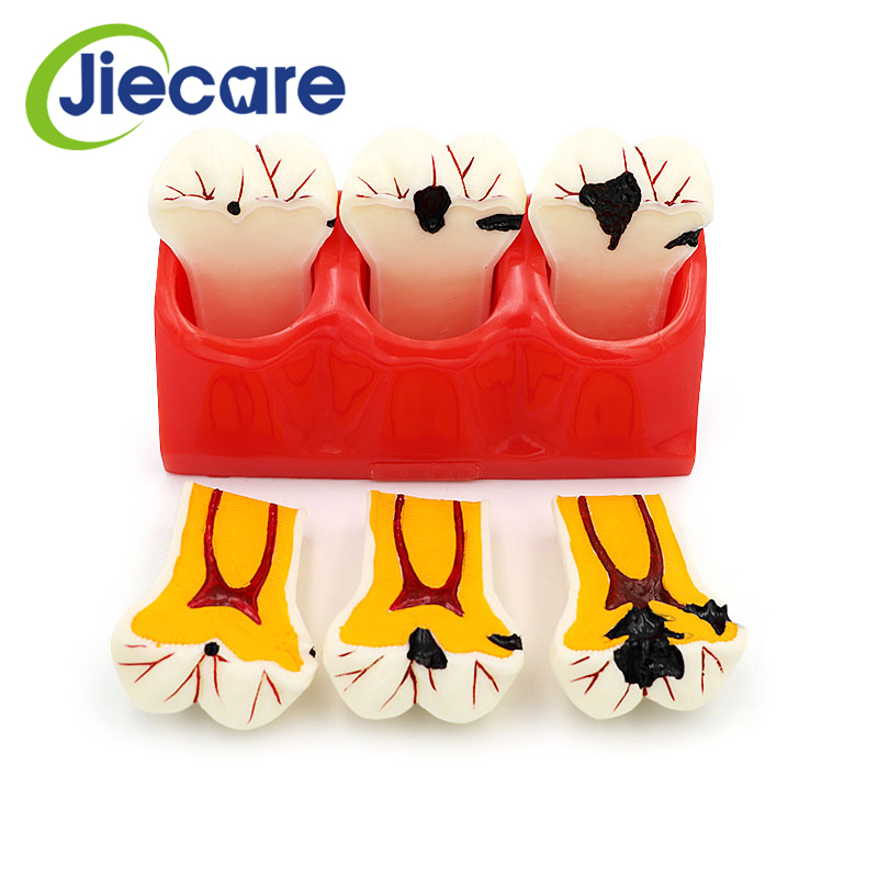 1PC Dental Denture Teeth Model Caries Disasscmbking Comparison Model Tooth Decay Model Dentist Pathologies For Medical Teaching soarday dental endodontic restoration model teaching communication model pathological display dental caries