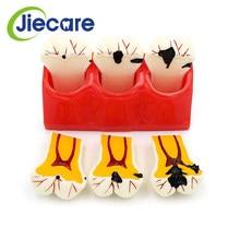 Modèle de dentisterie dentaire, 1 pièce, modèles de Caries, de désassemblage, de comparaison, de carie dentaire, modèles de carie dentaire, pathologiques pour l'enseignement médical