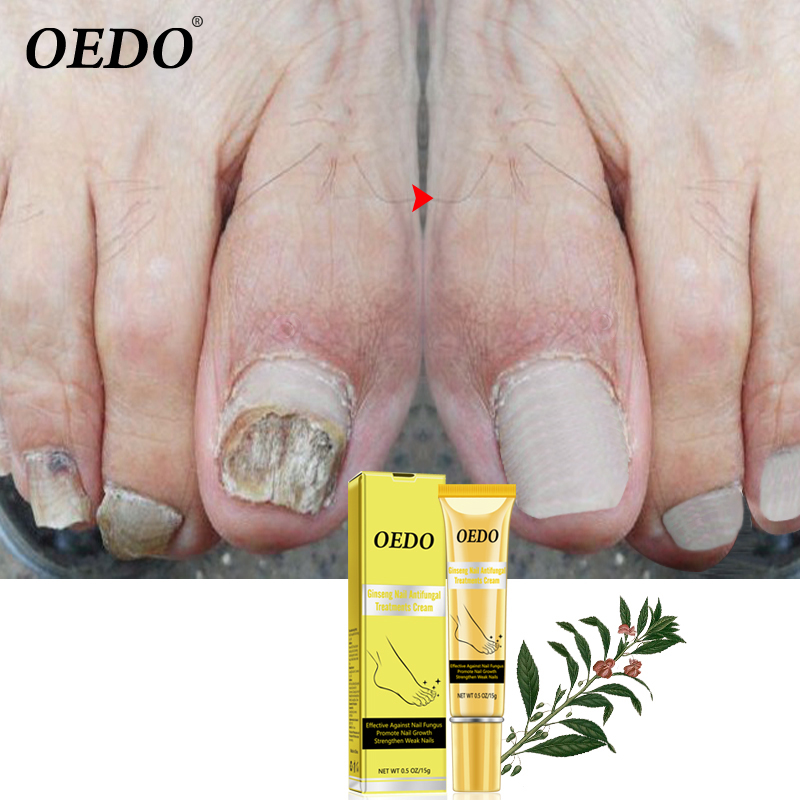 Ginseng Nail Antifungal Treatments Cream Herbal Removal Nail Fungus Toe Anti Infection Paronychia Onychomycosis Foot Care Cream