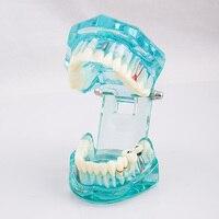2017 חדש לרפואת שיניים מודל שיני פתולוגי המבוגר שקוף מתאים למבוגרים