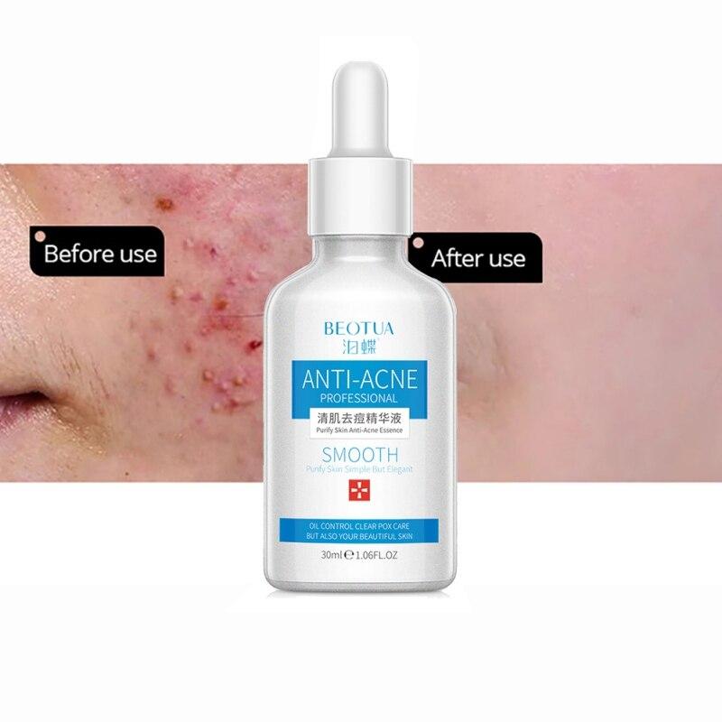Beauty Face Skin Care Acne Remove Serum Pore Removal