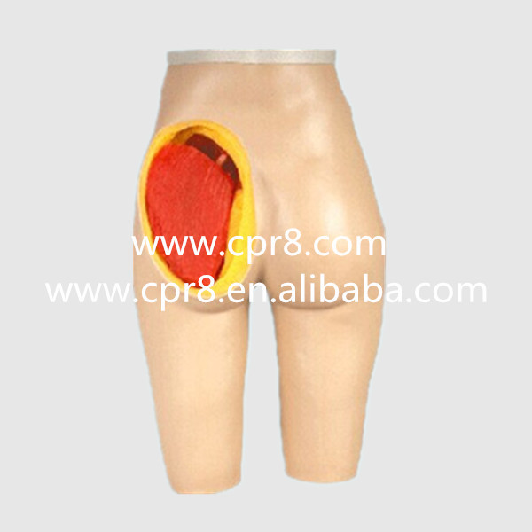 BIX-H4T Advanced Hip Muscle Injection And Anatomical Structure Model, Buttock Muscle Injection And Structure Anatomy WBW053 gastric anatomy model bix a1045 g149
