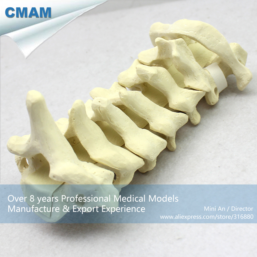 No. 12312 , Cervical Vertebra Bone, Model of Orthopedics Implantation Practice, CMAM china medical anatomical models no 12314 hip and femur bone model of orthopedics implantation practice cmam china medical anatomical models