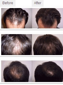 China hair solution Suppliers