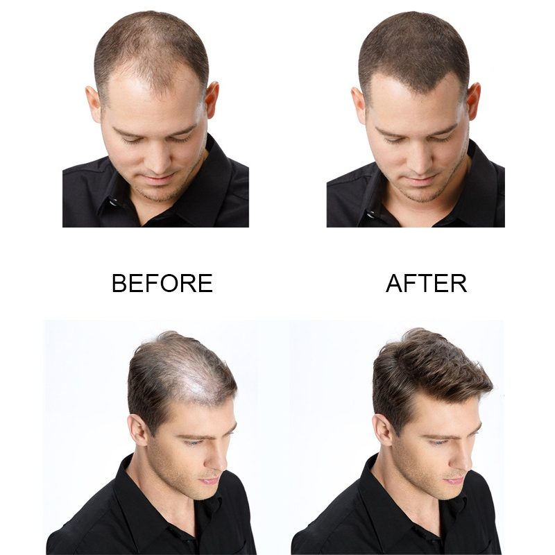 Full-Hair-Instantly-Hair-Building-hair loss-growth hair